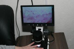 На кафедрі біомедичної інженерії з'явилось обладнання для дослідження мікроциркуляції крові